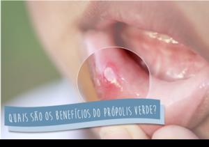 Quais_beneficios_do_própolis_verde